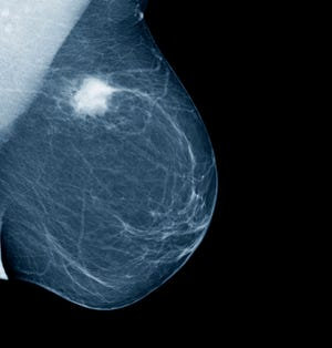 The American College of Radiology (ACR) recommends that women with an average risk of developing breast cancer begin annual screening mammography at age 40