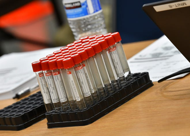 Empty vials are ready for testing procedures during a Minnesota Department of Health COVID-19 testing clinic Thursday, Oct. 15, 2020, at the River's Edge Convention Center in St. Cloud.