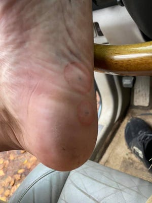 """Tyler Mayo suffered two puncture wounds on his left heel Oct. 25 after stepping on a """"nail trap"""" in the Mills River area of Pisgah National Forest."""