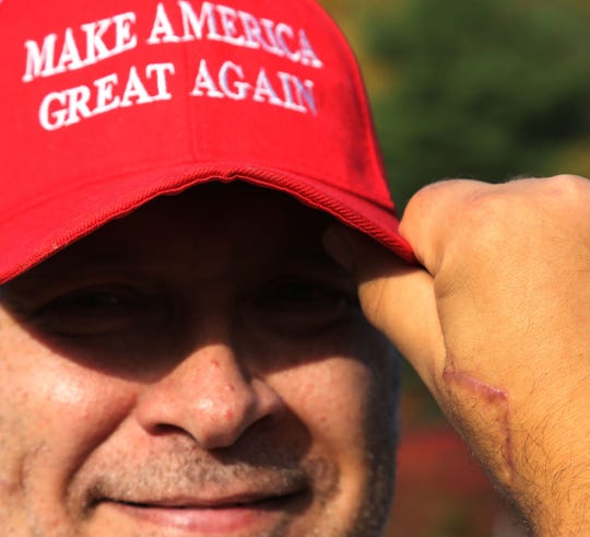 Rick Watcher of Pottsville shows a scar that required 39 stitches on his hand from a recent accident shoveling coal. He was with other supporters of President Donald Trump as they participate in a flag wave along a highway in Pottsville in Schuylkill County, Pennsylvania hope to get the president re-elected.