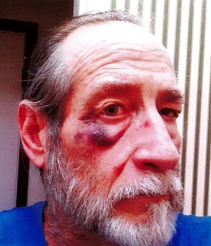 James Cullen, 69, of Livonia said he required medical care after an encounter with a Menards security guard.