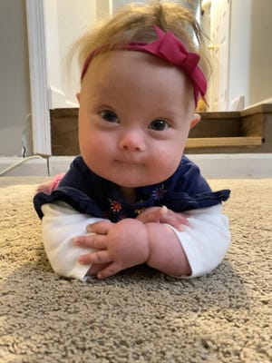 Born in May, Violet Anastasi has trisomy 21, an extra copy of the 21st chromosome that causes the characteristics associated with Down syndrome.