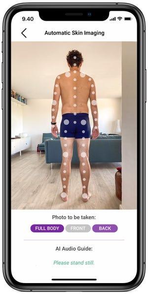 Automatic skin imaging by Miiskin app.