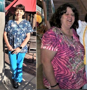 Jennifer Bray, whose body and life were transformed through gastric sleeve surgery at Parkview Medical Center.