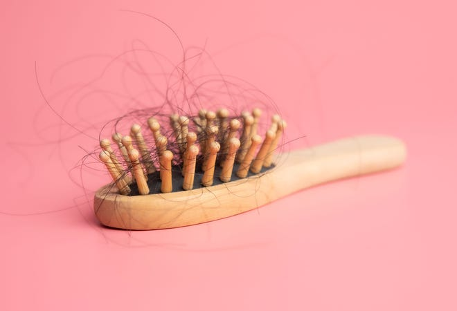 Several months into the COVID-19 pandemic, we are still discovering ways the virus can affect our health and well-being, including severe hair shedding.