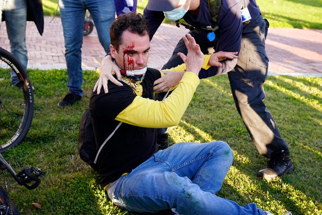 A counter-protester helps a supporter of President Donald Trump who was injured after he was attacked during a pro-Trump rally Saturday Nov. 14, 2020, in Washington. (AP Photo/Jacquelyn Martin)