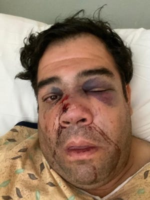 Miguel Ochoa, 46, underwent surgery after an Uber passenger repeatedly kicked his face and broke his nose in multiple places on Oct. 24, 2020.