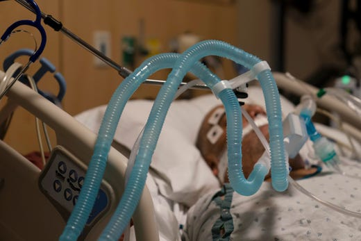 Ventilator tubes are attached to a COVID-19 patient at Providence Holy Cross Medical Center in the Mission Hills section of Los Angeles on Nov. 19, 2020. The surge of coronavirus is taking an increasingly grim toll across the United States, even as of a vaccine appears close at hand.