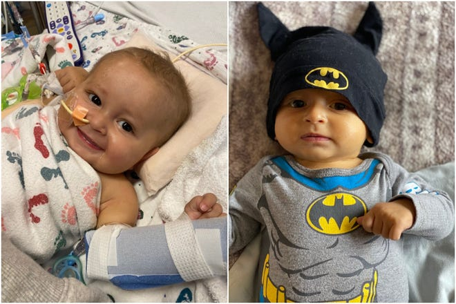 Jalen Stetina was born on May 18, 2020. Six months later, Jalen had a liver transplant. The picture on the right shows how jaundiced Jalen was before receiving his new liver.