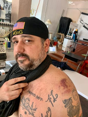 The head of the West Palm Beach chapter of the Proud Boys, known as Bobby Pickles, said his shoulder was bruised after someone hit him with a baton Saturday in Washington.