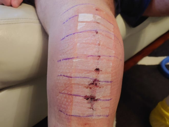 Matt Trowbridge's right knee, a week after total knee replacement surgery.