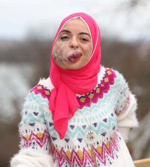 University of Akron graduate Lamise ElBetar will be returning to Egypt but hopes to come back to Akron or Boston to pursue a doctoral degree and continue treatment for the venous malformation on the right side of her face.