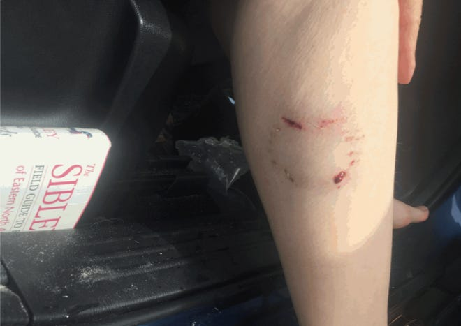 A couple who was attacked by two dogs while they were bird watching in Cape Coral on Friday, Jan. 8, 2021.