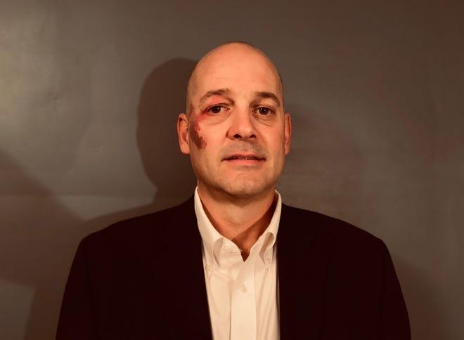 Scott Patton, Guest columnist