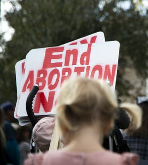 A new Arizona law makes it a crime to perform abortions based solely on genetic conditions like Down syndrome or cystic fibrosis, among several other provisions