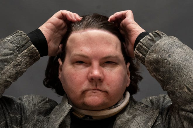 Joe DiMeo brushes back his hair while posing for a portrait at NYU Langone Health in New York, six months after an extremely rare double hand and face transplant. During a recent medical checkup, he practiced raising his eyebrows, opening and closing his eyes, puckering his mouth, giving a thumbs up and whistling. DiMeo can feel his new forehead, and often reaches up to push his long hair off of his face.