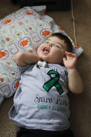 Aidan Moles was born at the University of Iowa Stead Family Children's Hospital in Iowa City in July 2018. He remained in the hospital for 946 days until he was discharged on Feb. 5. He hangs out Monday in the living room of his Fort Madison home. Aidan was born premature with bilateral dysplastic kidneys, which caused his kidneys to be nonfunctional. Aidan received a kidney transplant in November.