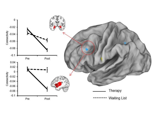 By looking at brain scans, researchers could see a difference in the communication levels of certain areas for people who had PTSD therapy and people who were on the waiting list for it.