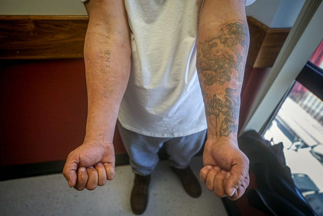 "Recovering heroin addict Philip shows his track-marked arms. ""I lost everything,"" he says, ""just for a drug."""
