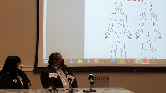 Jamee Johnson's father, Harvey Johnson Jr. (right) and stepmother Bridget Johnson look at a page from the autopsy of the young man during Friday's news conference.