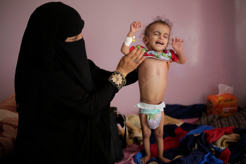 US resumes aid to Yemen's rebel north as famine threatens 2