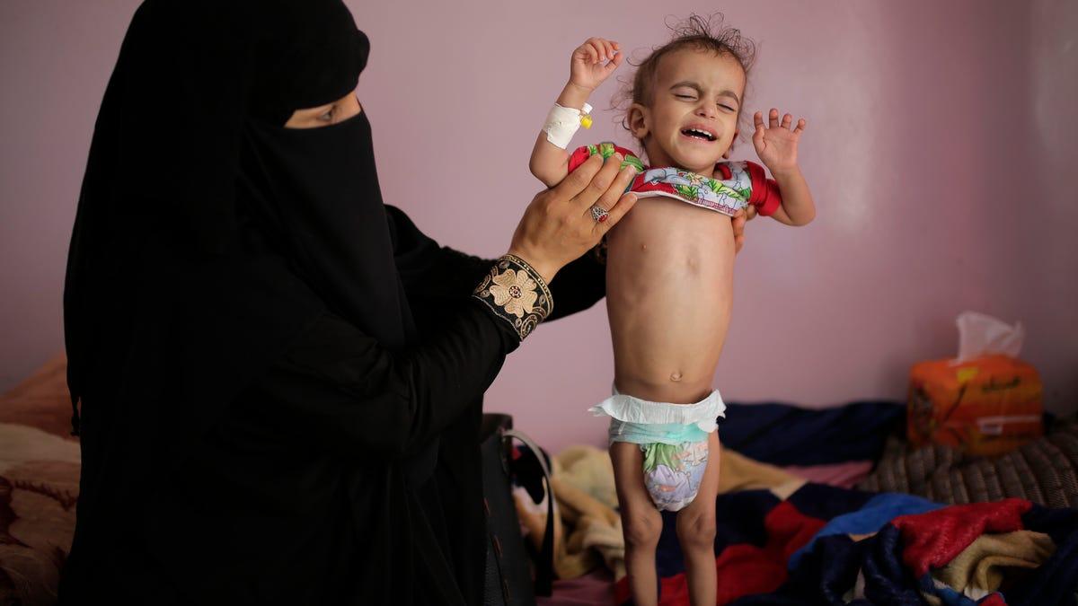 US resumes aid to Yemen's rebel north as famine threatens 3