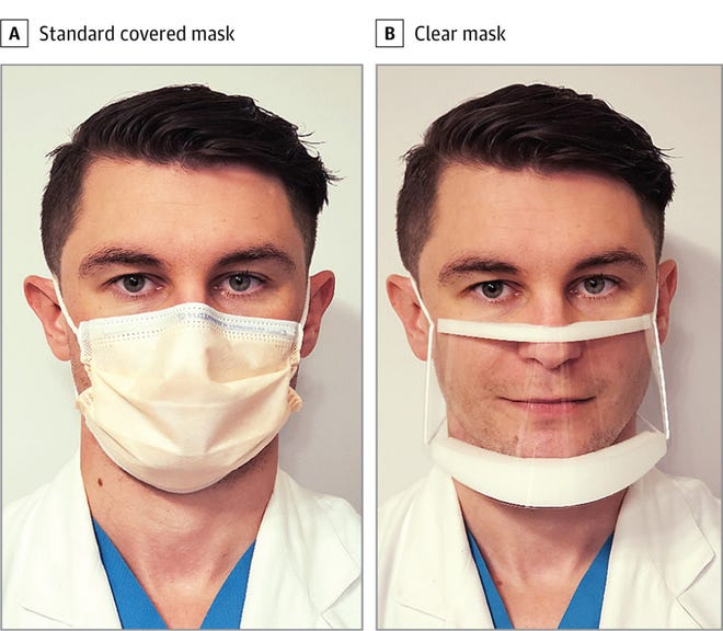 Dr. Ian Kratzke models the traditional and clear face masks that were tested in a new study.
