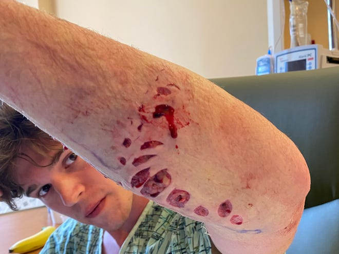 Bryce Albert, 20, of Naples shows his wound from a shark bite that occurred Thursday near the Juno Beach Pier