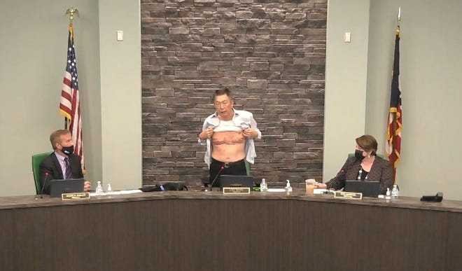 West Chester Township Board of Trustees President  Lee Wong shows scars that he received fighting in the U.S. military as he decries racism against Asian Americans at the March 22 meeting of the board of trustees.