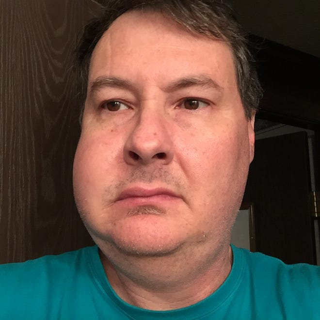 News Journal reporter Mark Caudill had a bad reaction to having a tooth extracted.