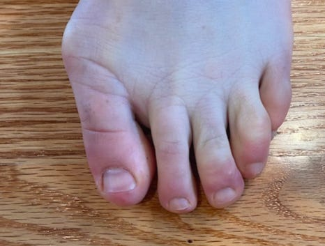 COVID toes, a reaction similar to chilblains that can occur in rare cases after receiving the Pfizer or Moderna COVID-19 vaccines. It is annoying but not life-threatening, say dermatologists.