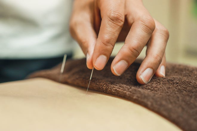 Acupuncture needles for woman's body