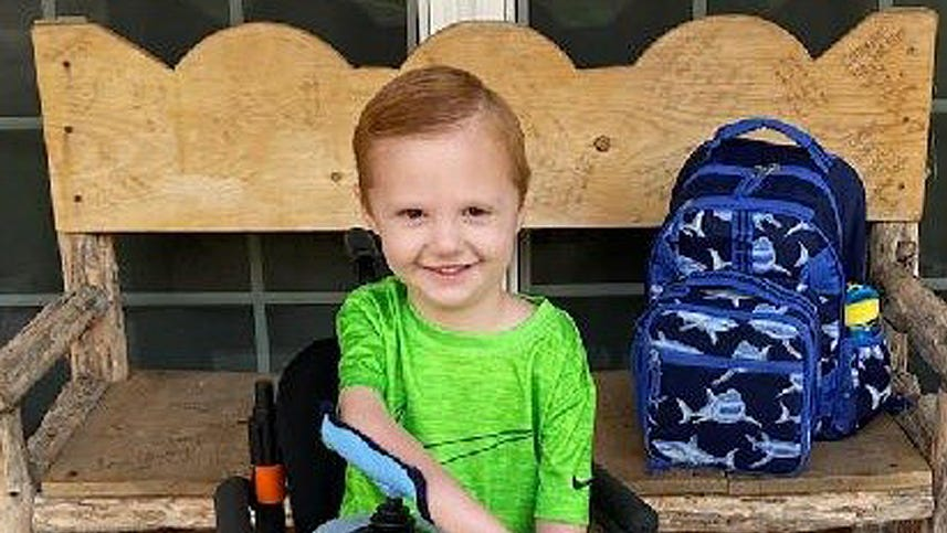 Fundraisers helping Logan Fox, 5, receive specialized surgery
