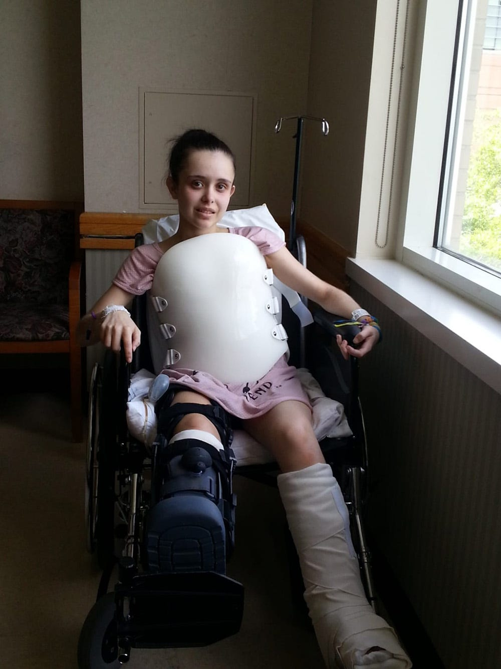 Stefany Neves wear a brace to support her broken back while she recovers at Rhode Island Hospital after the circus accident, which left her with broken bones in most of her body as well as a lacerated liver.