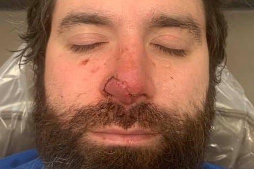 Authorities: Bar patron bit chunk off Louisiana man's nose 2