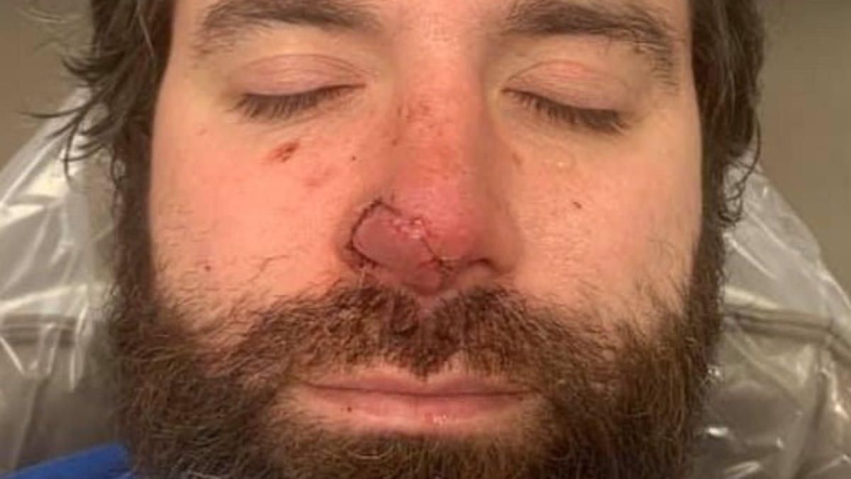 Authorities: Bar patron bit chunk off Louisiana man's nose 3