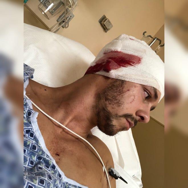 Jeffrey Heim injured his head from an alligator attack.