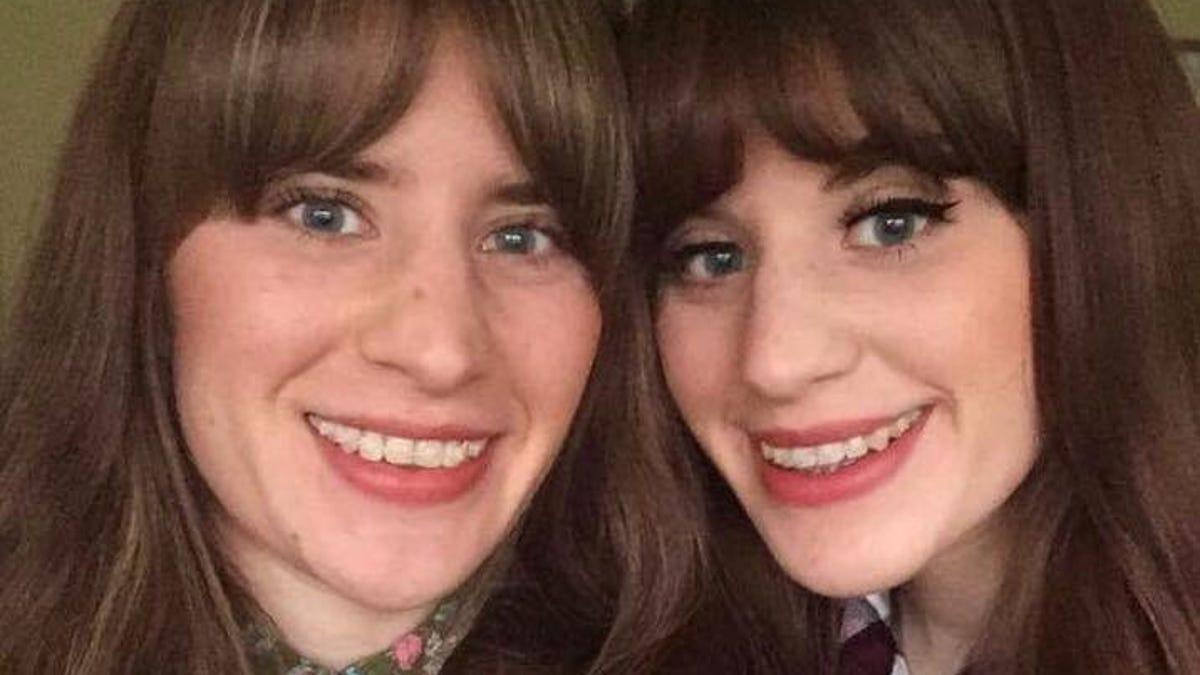 British twin sisters injured in Mexico crocodile attack 1