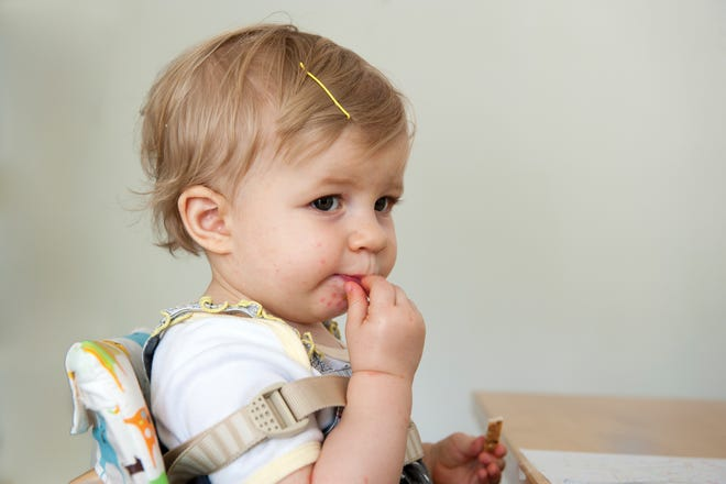 Hand, foot and mouth disease is common in toddlers.