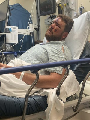 Oconee County volunteer first responder Spence Dalton suffered multiple injuries when he was hit by a car while working the scene of a downed tree off Highway 316.