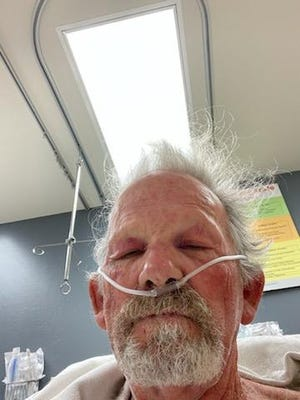 Steve Baker, 68, took a selfie in the hospital after he was admitted due to suffering hundreds of bee stings from an attack on July 14 in Thousand Oaks.