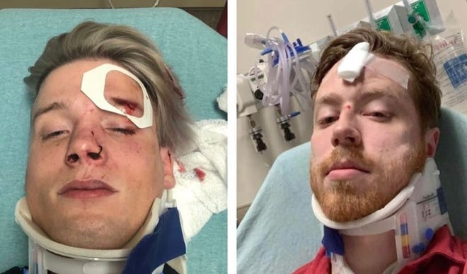 Tristan Perry, left, and Spencer Deehring said they were beat up and called homophobic slurs after leaving the Rain night club in 2019 in downtown Austin.