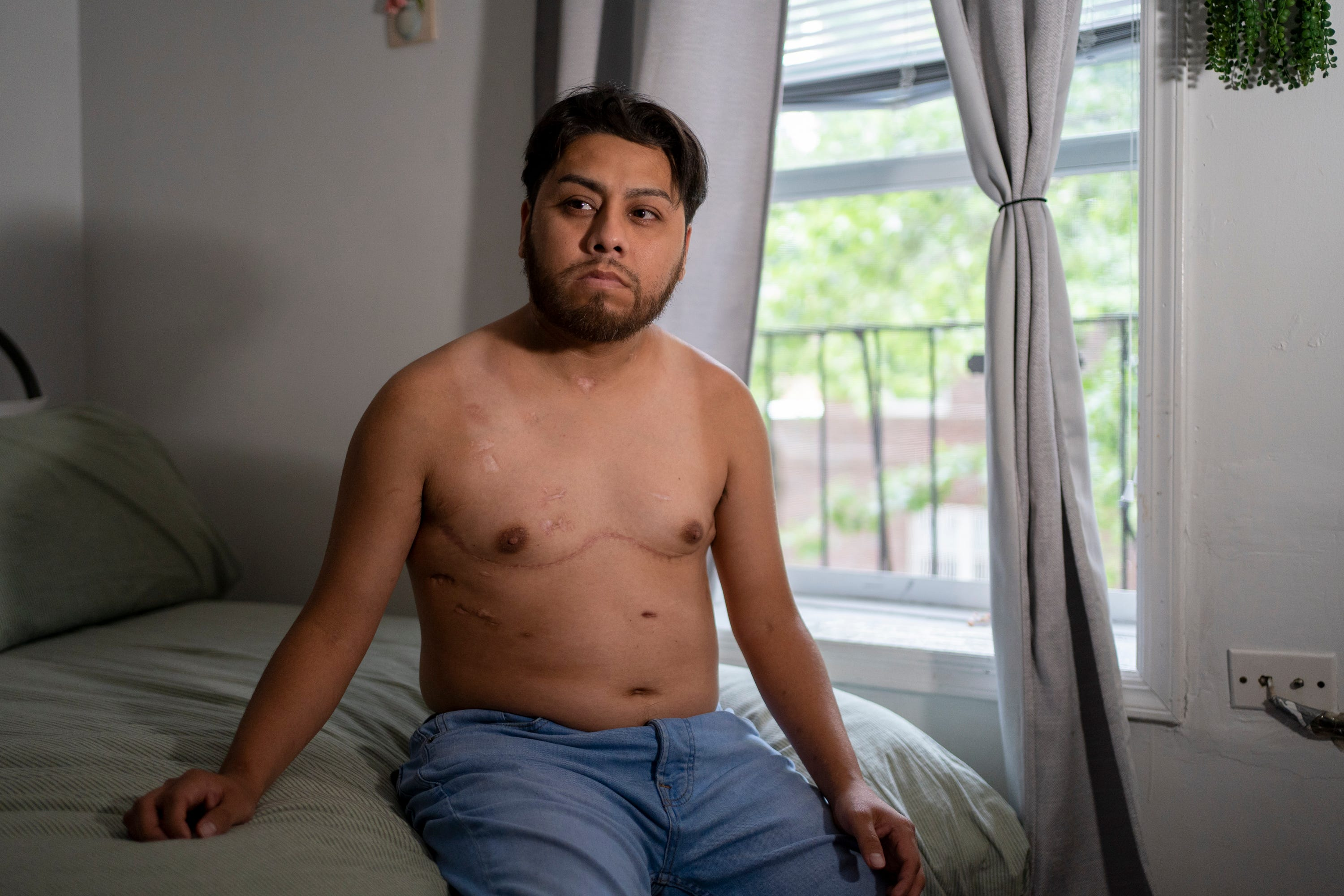 """Aug 4, 2021; New York, NY, USA; Edwin """"Avi"""" Luna shows his scars from his double-lung transplant surgery back in January of 2021. Due to COVID-19, Luna spent 11 months in the hospital. He was only 31-years-old when he caught the disease. Now at 33, Luna remains determined to work hard as he continues to recover. Mandatory credit: Michelle Hanks- USA TODAY"""