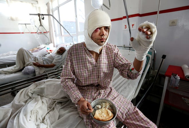 An employee of the Afghan television station Tolo TV, who was wounded in a Taliban suicide attack on a minibus, recovers in a hospital in Kabul, Afghanistan, in January 2016. At least 72 journalists have been killed while covering the war in Afghanistan.