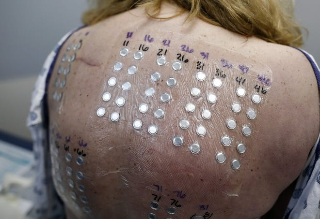 Skin-patch testing can help you find out if you are allergic to metal. If you are, it's important to work with your dermatologist to find ways to limit your exposure