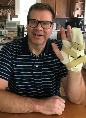 The author shows a splint that he'll wear at night to prevent his pinky from curling up. The splint is part of his treatment for Dupuytren's contracture.