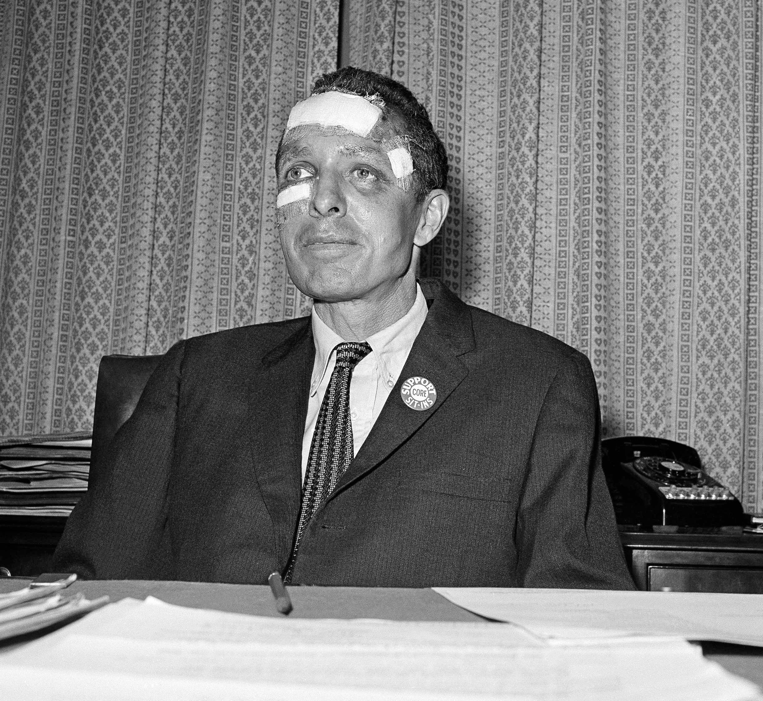 James Peck of the Congress of Racial Equality (CORE) shows the effects of a beating he received in Anniston, Ala., during a Freedom Riders bus trip as he answers questions at a press conference in New York City, May 17, 1961.