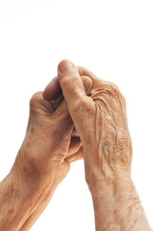Approximately 54 million adults in the United States are living with arthritis.