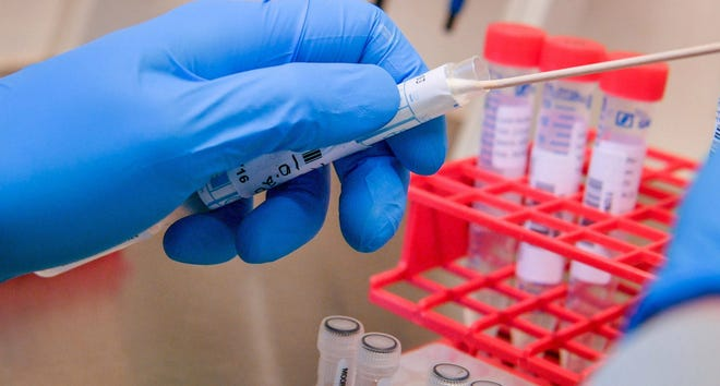 Testing is easy and efficient, according to health officials.